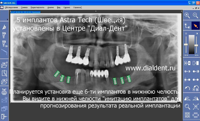 Имплантат в пазухе