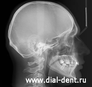 ТРГ головы в боковой проекции