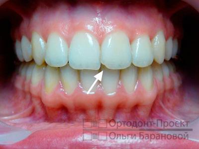 Сточился один передний зуб