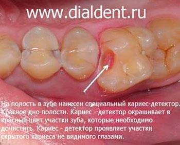 Как лечить воспаление нерва если отдает в зубы