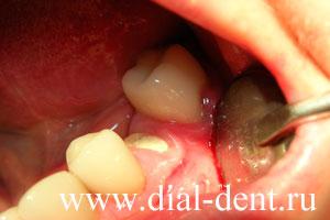 часть зуба закрыта разросшейся десной