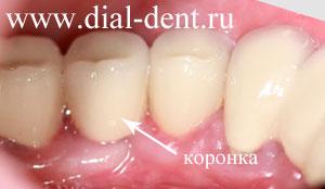 протезирование зубов после удаления десны