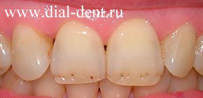 Как без вреда отбелить зубы дома без вреда для эмали