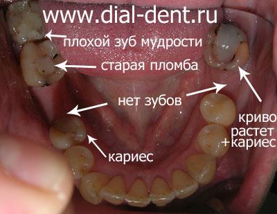 Следите за состоянием зубов, уделяйте достаточно внимания их гигиене и вовремя обращайтесь к стоматологу