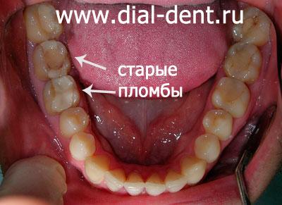 отбеливание зубов опалесценс