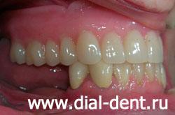 виниры на нижние зубы показать