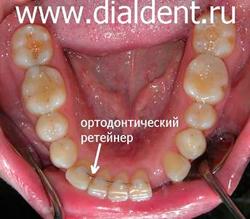 ортодонтическое лечение перед протезированием