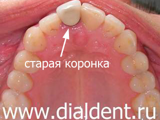 металлокерамика передние зубы фото