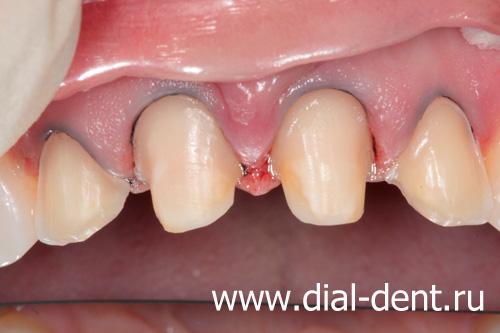 виниры на зубы как устанавливаются и цены