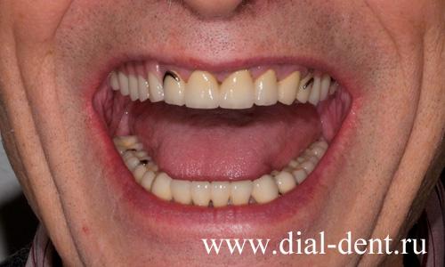 бюгельный протез фото зубной