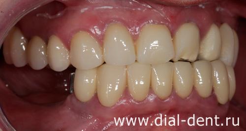 знать: при протезировании зубов ушла десна муниципального