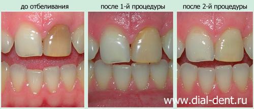 отбеливание зубов москва