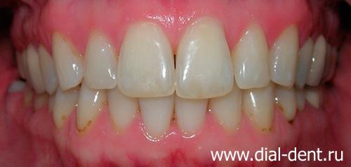 лазерное отбеливание зубов воронеж