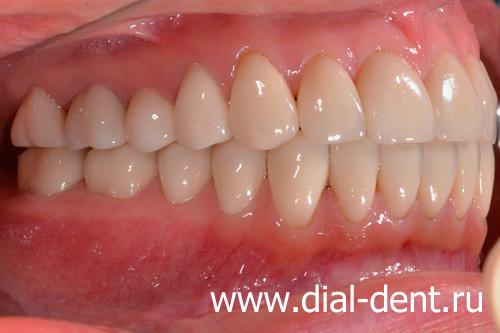 Эстетическая реставрация передних зубов до и после