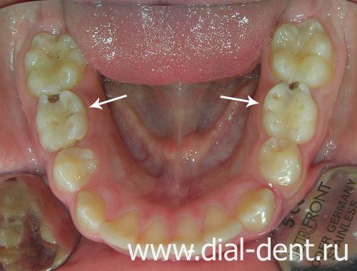 отбеливание зубов инструкция