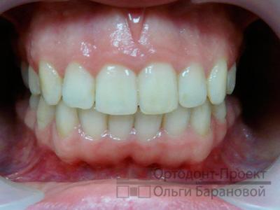 исправление прикуса и выравнивание зубов брекетами Инкогнито