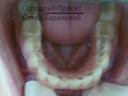 ретейнер на нижней челюсти