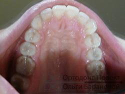 после ортодонтического лечения