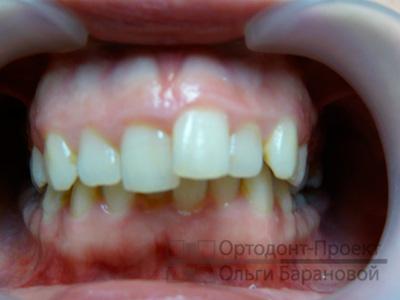скученность зубов, глубокий прикус