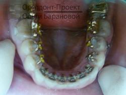 выравнивание зубов нижней челюсти