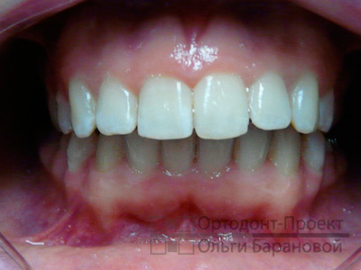 выравнивание зубов брекетами Инкогнито