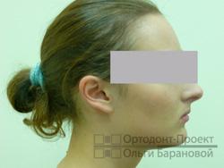 профиль лица после исправления прикуса