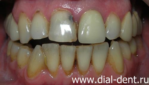 В зубу дырка и из десны
