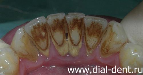 Черные точки на зубах как избавиться в