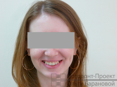 после лечения у ортодонта