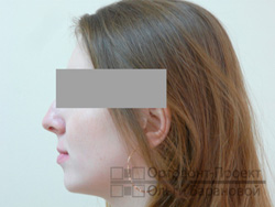 профиль после лечения у ортодонта