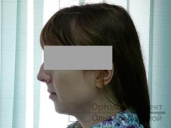 профиль до ортодонтического лечения