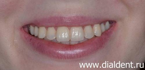 ортодонтическое лечение и протезирование на имплантах