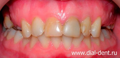 Лучшие средства отбеливания зубов