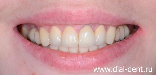 зубы из металлокерамики до и после фото