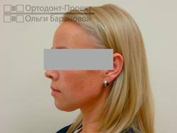 профиль после ортодонтического лечения