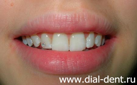 Фото зубов с украшениями