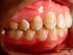справа после ортодонтического лечения