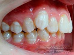 вид справа до ортодонтического лечения