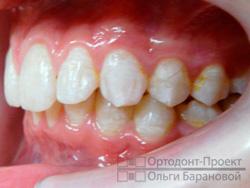 вид слева до ортодонтического лечения