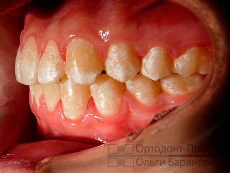окончание лечения, контакты между зубами плотные