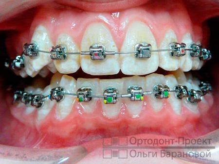 брекеты Damon на зубах