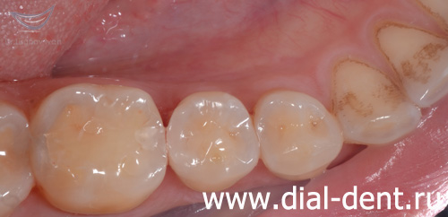 Откололся кусочек зуба – замена пломбы
