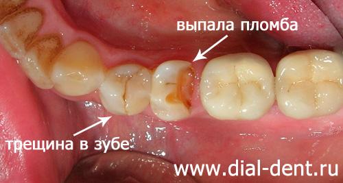 Если после пломбы заболел зуб