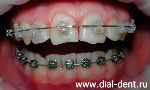 отбеливание зубов светодиодной лампой отзывы