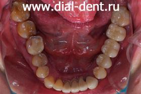 нижние зубы до лечения