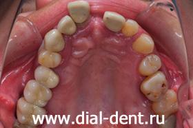верхние зубы до лечения