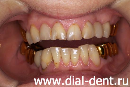 Средства из аптеки чтобы отбелить зубы цены