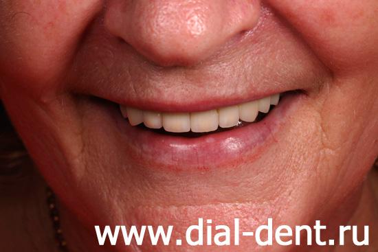 результат лечения и протезирования зубов в Диал-Дент