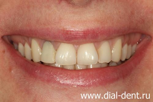 Передние зубы по темнели что делать
