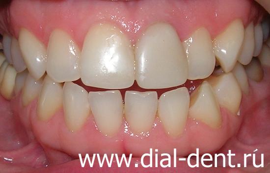 отбеливание каналов зуба